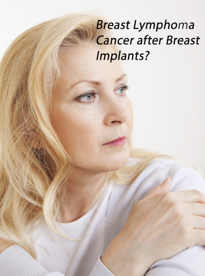 Breast Lymphoma Cancer after Breast Implants?
