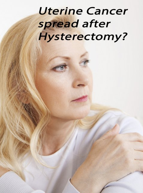 Uterine Cancer Spread after Hysterectomy?